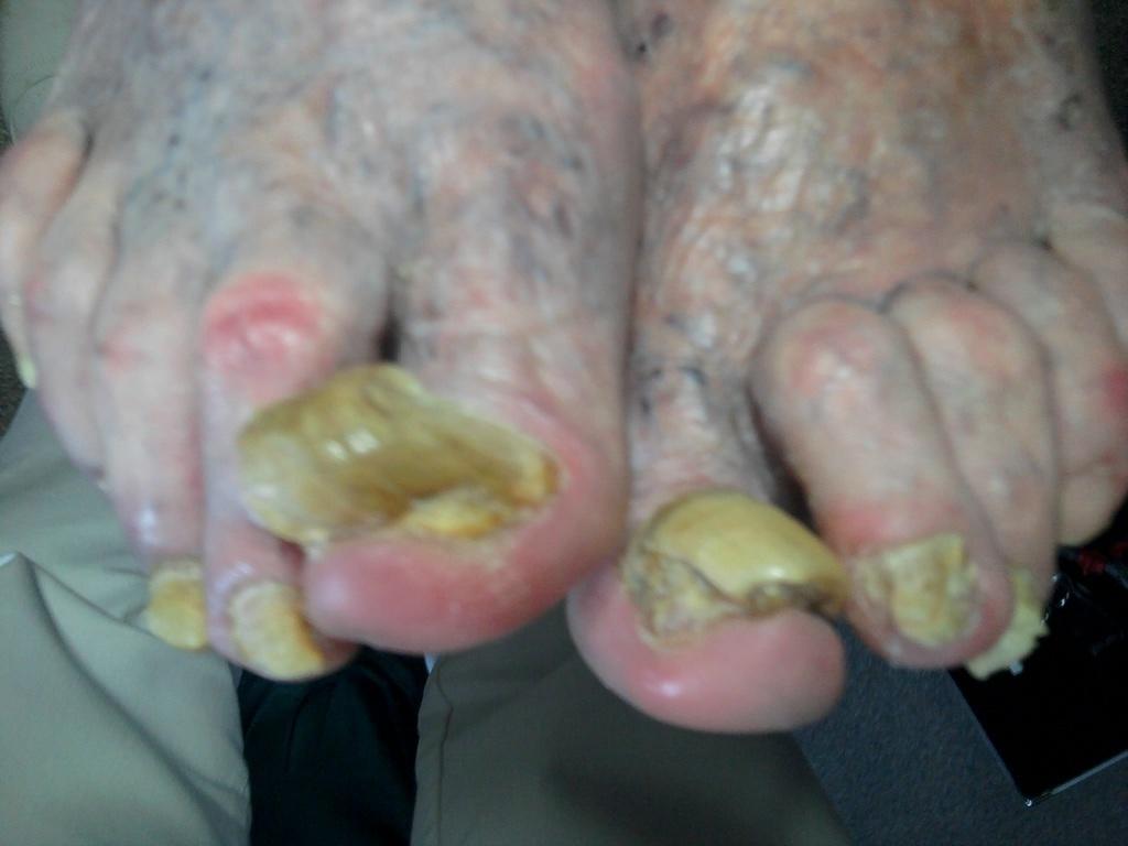 Wie den Nagelzwang auf den Fingern zu behandeln